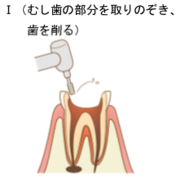 神経の処置1