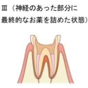 神経の処置3