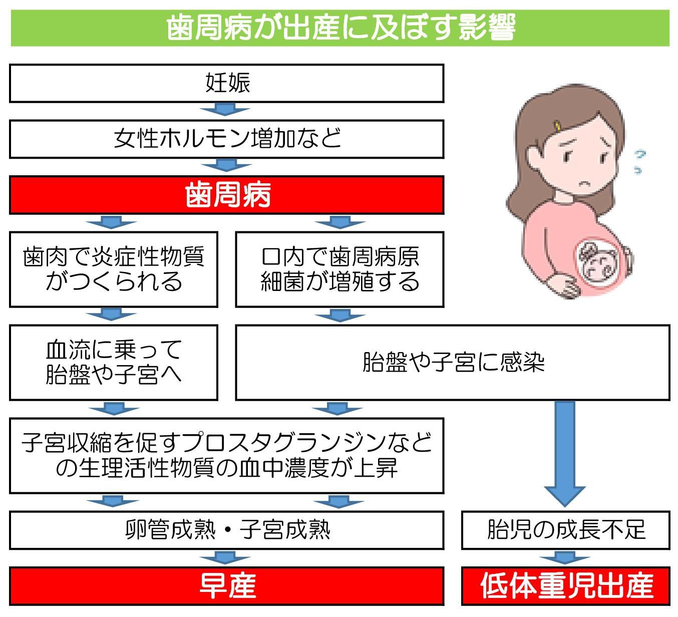 妊娠と歯周病