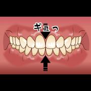 歯ぎしり 噛みしめ