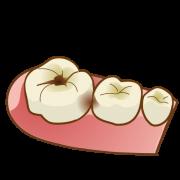 6歳臼歯 むし歯